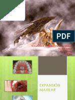 expansion maxilar