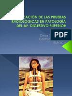 INDICACIÓN DE LAS PRUEBAS RADIOLÓGICAS EN PATOLOGÍA DEL AP. DIGESTIVO SUPERIOR