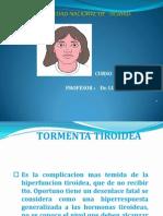 tormenta tiroidea