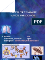 Tuberculose Pulmonaire-Aspects Radiologiques