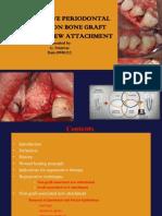 non-bone graft associated regenerative periodontal therapy
