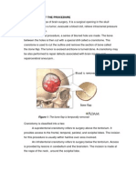 Craniotomy case report