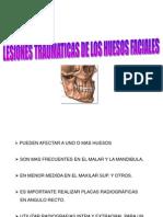 FRACTURA DE LOS HUESOS.ppt