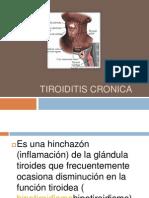 Tiroiditis Cronica