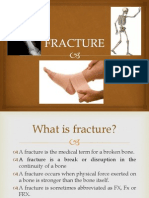 All About Fracture