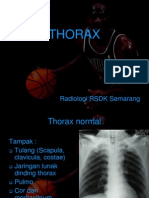 thorax ppt