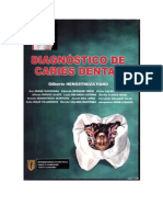 Henostroza Gilberto - Diagnostico de Caries Dental