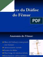 Fraturas Da Diafise de Femur