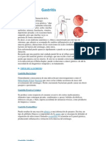 Gastritis Sollll