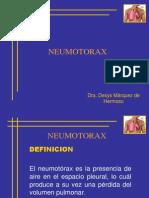 4CLASE Neumotorax DE 02007.pptx