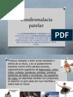 Condromalacia Patelar