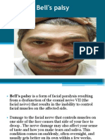 Bell_s Palsy Report