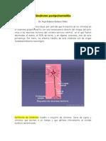 sindrome-postpoliomielitis
