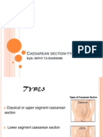 caesarian section