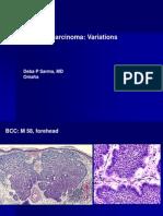 Basal Cell Carcinoma Variations