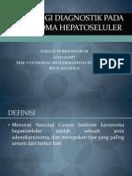 hepatocellular carcinoma