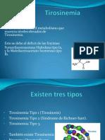 Tirosinemia