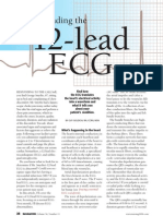 Understanding the 12 Lead ECG