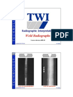 Weld Radiographs