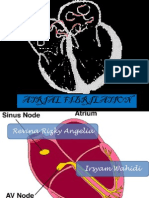 Atrial Fibrilasi