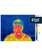 Rapport Camera Infrarouge , la thermographie
