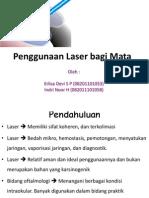 Penggunaan Laser Bagi Mata