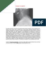 A Primera Vista 114 (Signo Del Pulgar en La Epiglotitis)