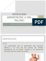 Estenosis Hipertrofica Del Piloro