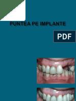 RPI-curs7.ppt