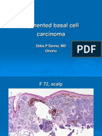 Pigmented Basal Cell Carcinoma. F 72, Scalp. PPT