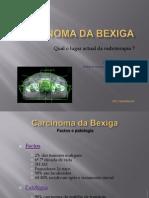 Carcinoma da bexiga