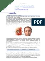 Parálisis de Bell o parálisis facial periférica