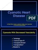 Cyanotic Heart Dz