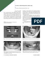 Mirfazaelian 2000 the Journal of Prosthetic Dentistry 1