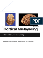cortical mislayering