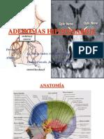 8.-Adenomas Hipofisiarios