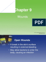 CH09 Wounds