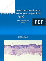 Superficial Basal Cell Carcinoma, m 63 Chest