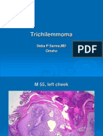 Trichilemmoma. M 55, Left Cheek. PPT