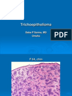 Trichoepithelioma, F Chin, PPT