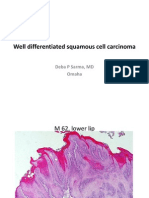 Well Differentiated Squamous Cell Carcinoma