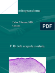 Xanthogranuloma Cases DS