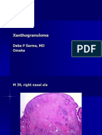 Xanthogranuloma. M 39, Right Right Ala