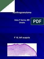 Xanthogranuloma., F 18, Left Scapula. PPT