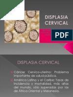 Displasia Cervical