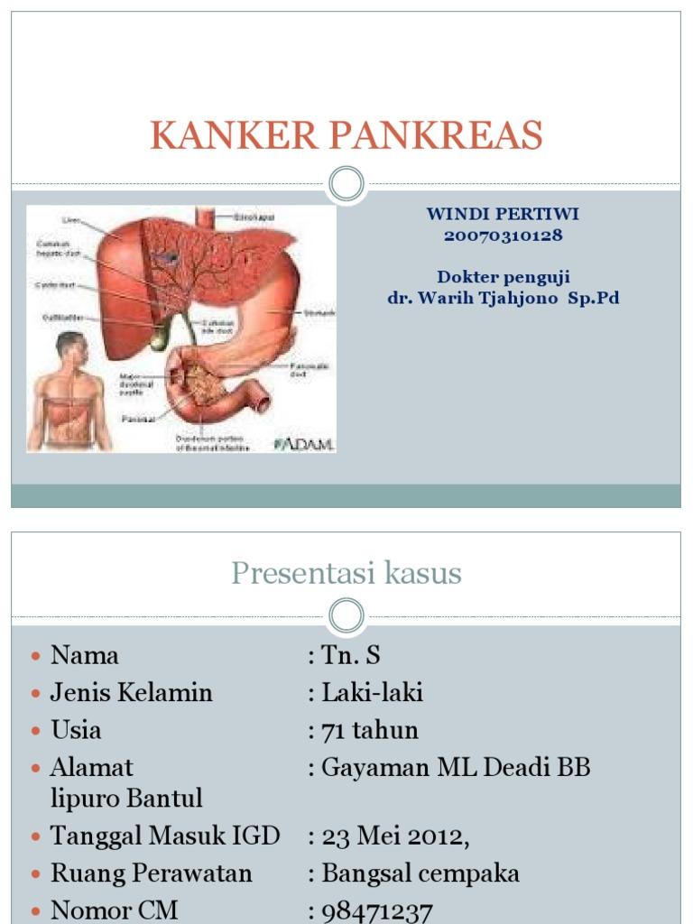 Kanker Pankreas Ppt Presentasi