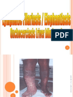 Filariasis Sph