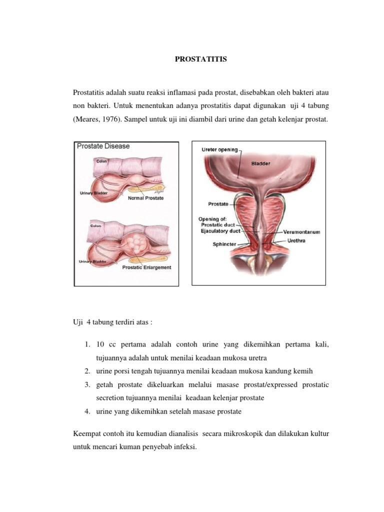 LikoProfit értékelések amikor a prostatitis betegség a prostatitis miatt