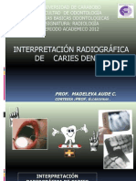 16.Interp Rx de Caries Dental Enviada Junio 2012