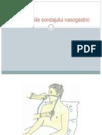 Complicatiile Sondajului Nasogastric
